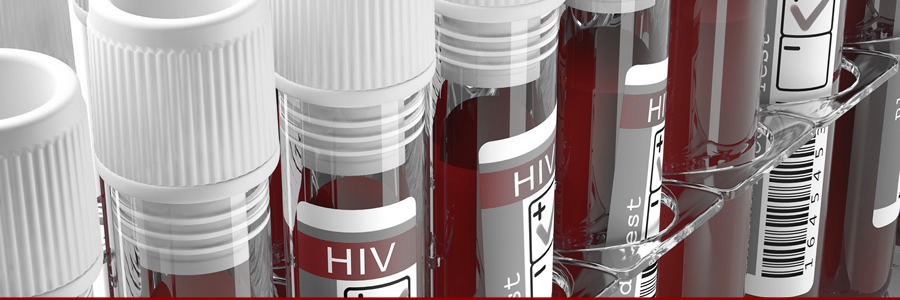 Can Supplements Help With Symptoms of AIDS?