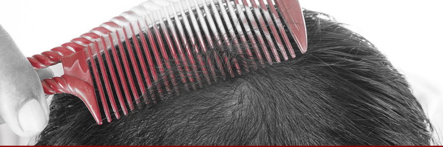 Can Supplements Help With Hair Loss or the Symptoms of Alopecia?
