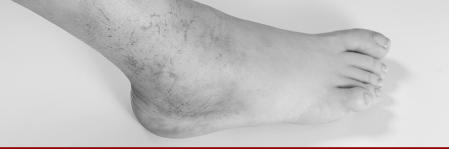 Can Supplements Help With Swollen Ankles?