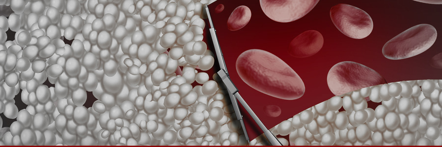Can Supplements Play a Role in Easing Atherosclerosis Symptoms?