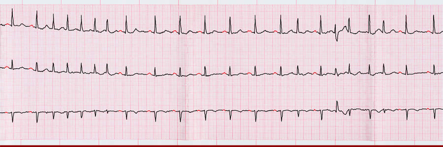 Can Supplements Help With Atrial Flutter?