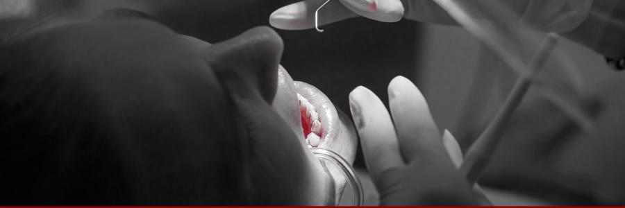 Supplements Can Help Alleviate Symptoms of Bleeding Gums