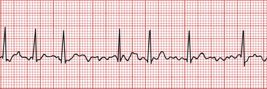 Supplements Can Help Ease Symptoms of Bradycardia