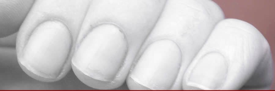 Darkened Nail Beds Can Be Alleviated With Whole Food Concentrates