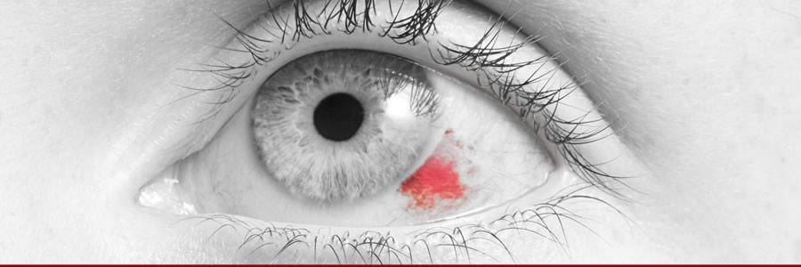 Supplements Can Help Repair Broken Blood Vessels