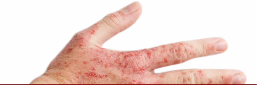 Eczema Can Ruin Your Summer
