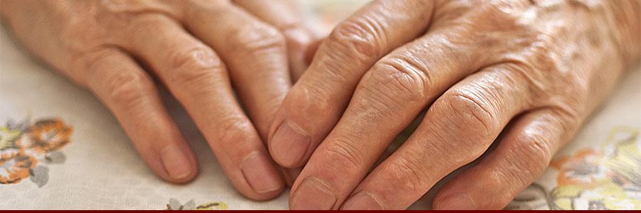 Arthritic hands on a table
